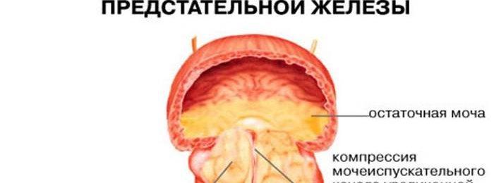 Лечение аденомы простатита у мужчин лекарства отзывы от чего струя бобра помогает от простатита так ли это