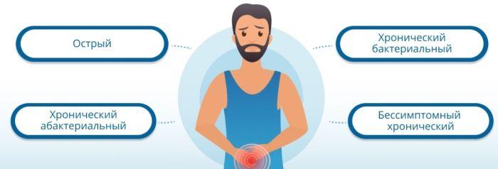 острый простатиты у мужчин симптомы лечение