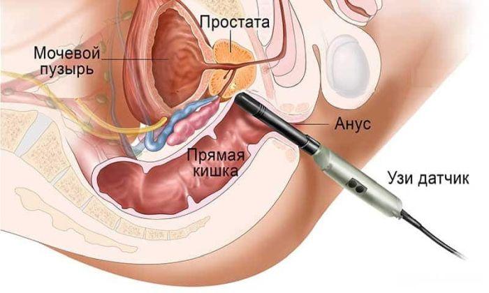 трузи предстательной железы как делают